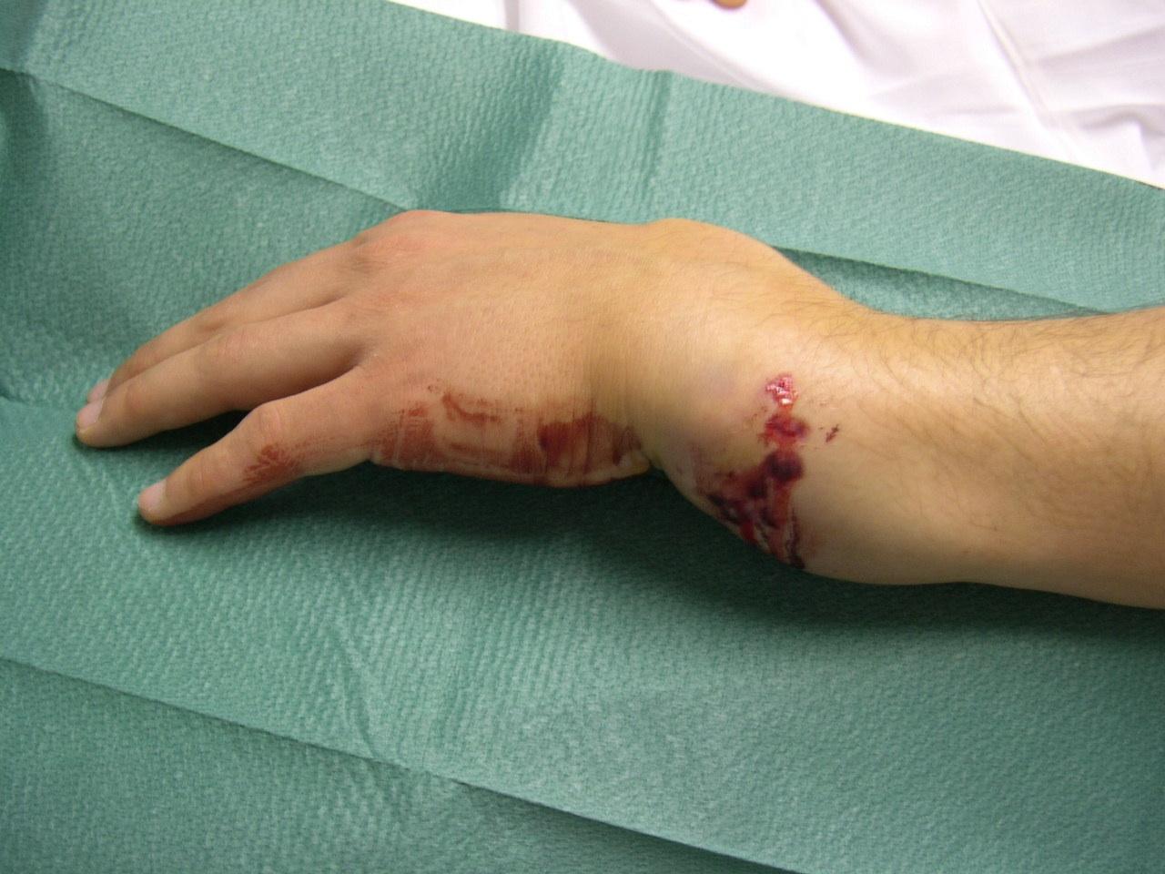 Schadevergoeding gebroken been, voet, arm, hand, rug of heup: https://juristenkantoor.nl/?wiki=schadevergoeding-gebroken-voet-arm...